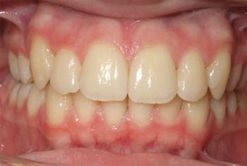 Zobovje po ortodontski obdelavi z Invisalign sistemom