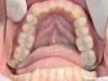 Izdelava onleyev na obrabljenih zadnjih zobeh