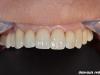 Izdelava porcelanskih lusk in polnokeramičnih prevlek na zgornjih zobeh