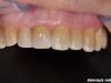 Izdelava porcelanskih lusk na zgornjih sprednjih zobeh