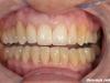 Popolna rekonstrukcija zobovja v zgornji in spodnji čeljustnici s polnokeramičnimi prevlekami