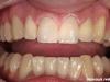 Izdelava polnokeramičnih prevlek na zgornjih sprednjih zobeh