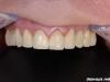 Popolna rekonstrukcija zobovja zgornje čeljustnice s kovinsko porcelanskimi prevlekami