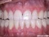 Popolna rekonstrukcija zobovja zgornje in spodnje čeljustnice s porcelanskimi luskami