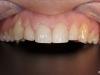 Estetska obdelava razmikov med sprednjimi zobmi s kompozitnimi zalivkami