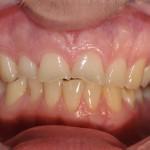 Kislinska erozija zob