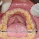 Kislinska erozija zob 2